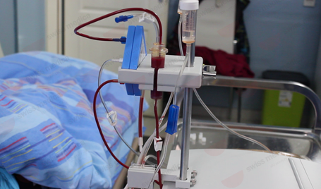 Plasmapheresis for ms treatment procedure