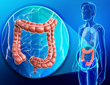Colorectal cancer could be stopped