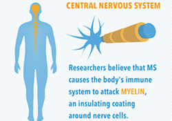 nervous system multiple sclerosis