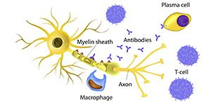 Early signs of multiple sclerosis - Problems caused by MS