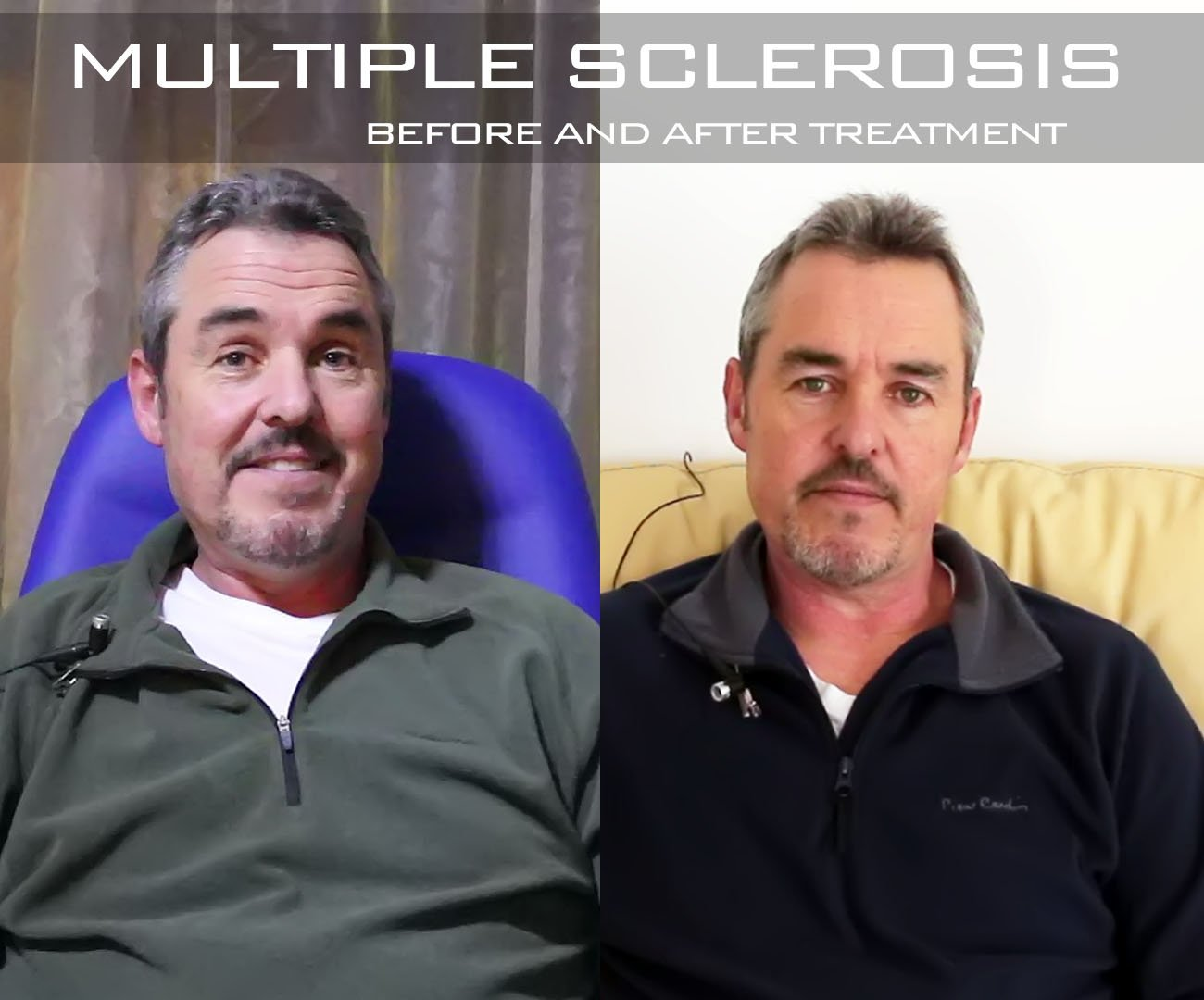 multiple sclerosis treatment before and after